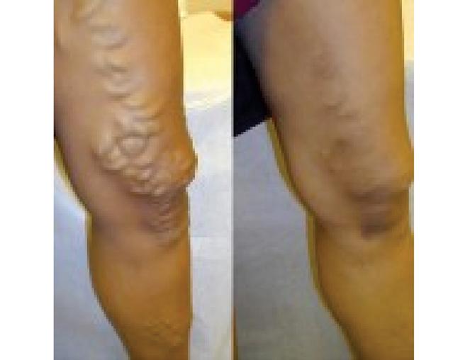 Tratamentul cu gel varicoasă